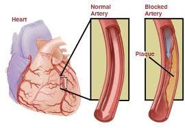 Artery diagram