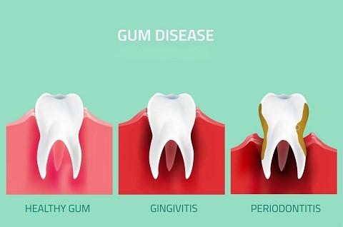 Gum disease stages