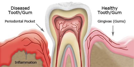 Diseased tooth/gum vs Healthy tooth/gum