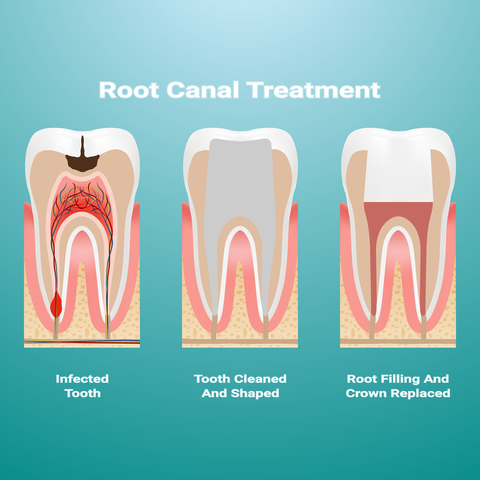 Stages of root canal treatment