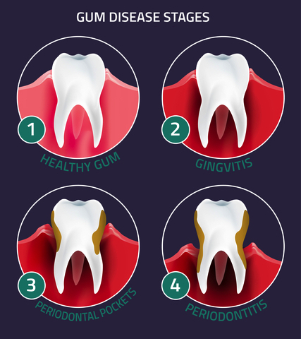 Gingivitis and gum disease stages