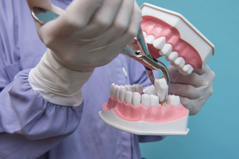Using a mouth model a dentist acts to removing a tooth