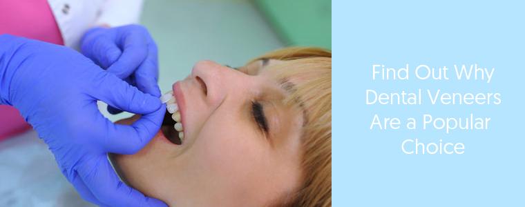 Dental veneer feature image of a lady with dental veneers