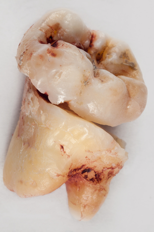 A wisdom tooth cut in half for extraction