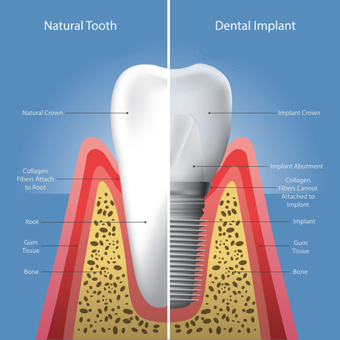 Natural tooth and dental implant comparison
