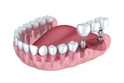 dental implant with the crown