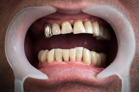 A man with Gum disease