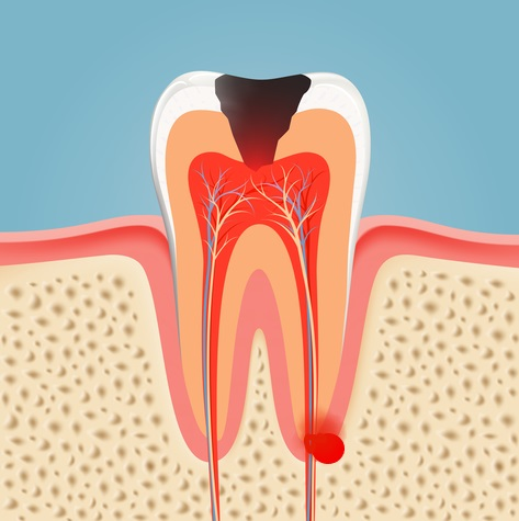 Illustration of a tooth abscess