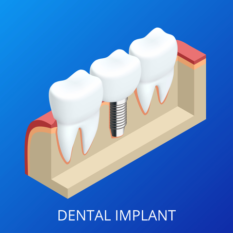 A dental implant that looks like the shape of a tooth