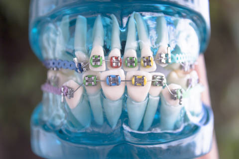 A image showing braces on teeth