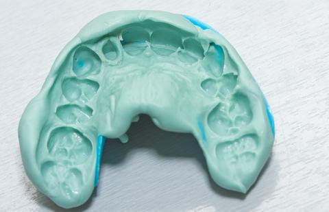A dental impression