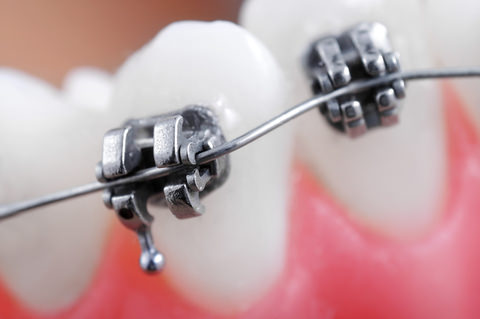 Braces that can cause swollen gums