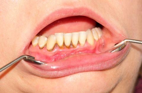 Tartar bulid up on the lower teeth