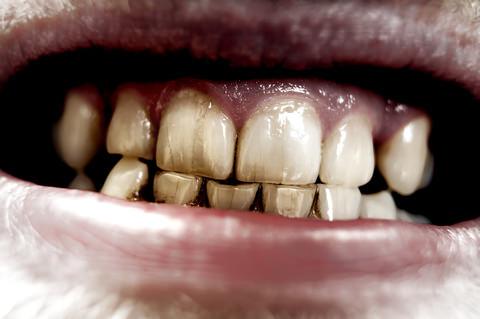 Discolouration of teeth
