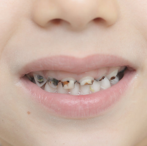Tooth decay in a child