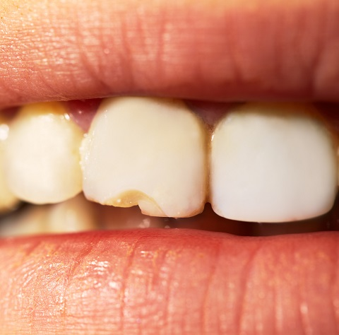 A chipped tooth
