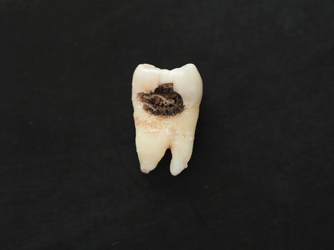 A cavity inside a tooth