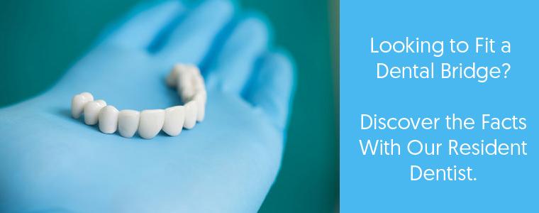 Dental bridge feature image