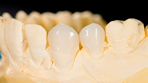 Veneers are place on the front part of your tooth only