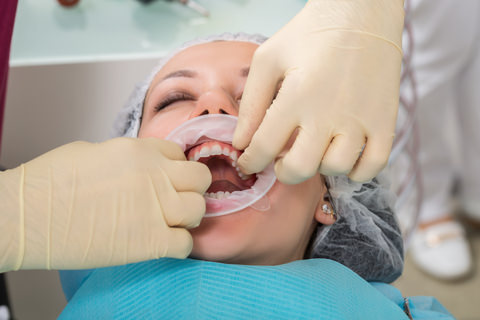 A dentist making sure the patients crowns are secured properly