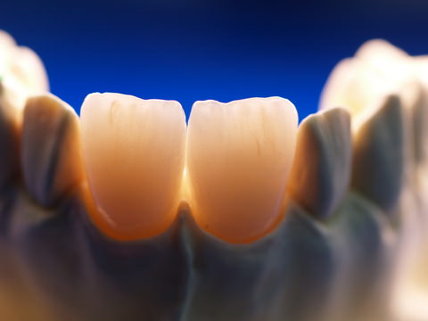 Front teeth with dental crowns
