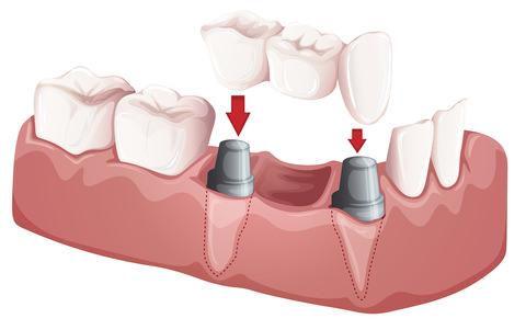 A illustration of a dental bridge