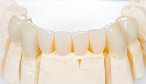 A dental bridge on a mould