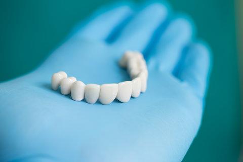 A dental bridge on a dentists hand