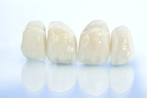 A dental bridge made up by crowns