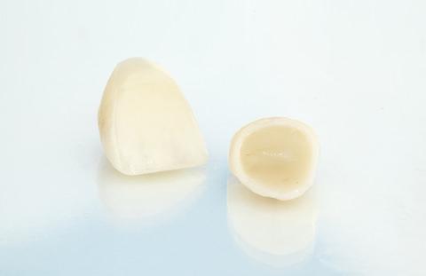 Dental crown removal