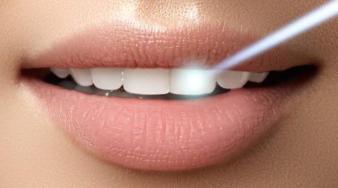 A lady with laserTeeth whitening