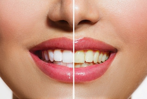 A lady smiling before and after teeth whitening