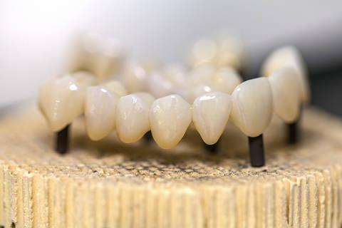 Cosemtic bridge work and teeth whitening