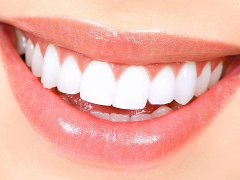 A lady smiling who has had teeth whitening