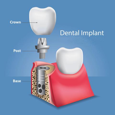 A breakdown of a Dental Implant