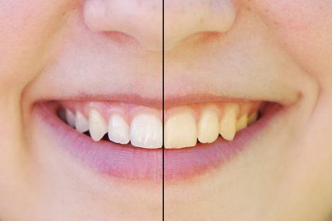 Teeth whitening on natural teeth