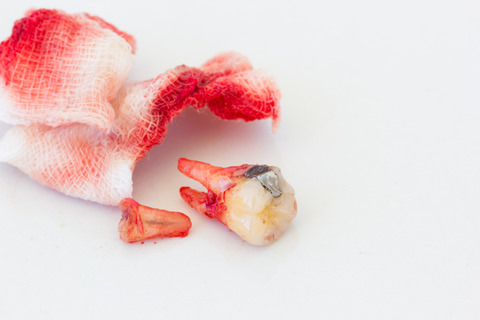 Bleeding after a wisdom tooth has been removed