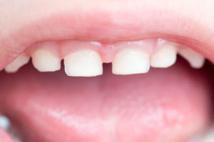 A Child's loose tooth feature image