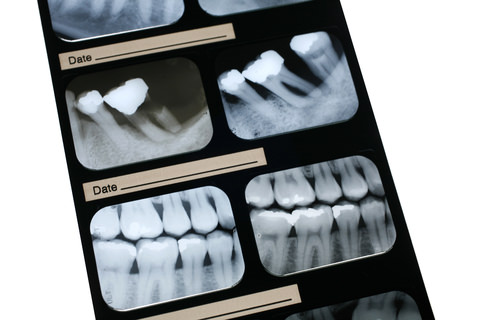 An X-Ray of a patient's teeth