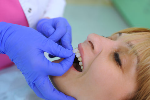 A dental veneer being put on a lady's tooth