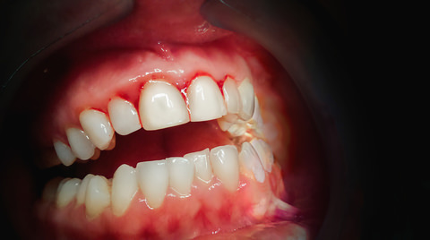 A person with Gingivitis