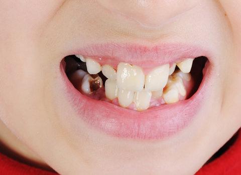 Kids 'shark teeth'