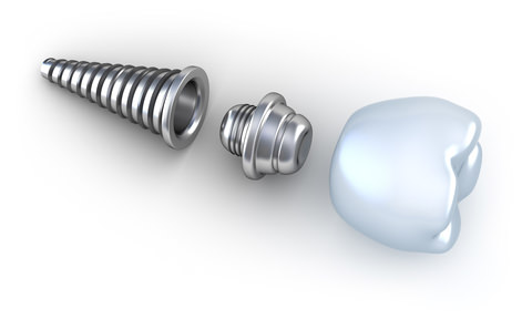 Three sections of a dental Implant