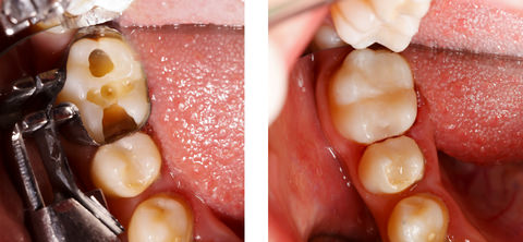 A before and after shot of a composite filling
