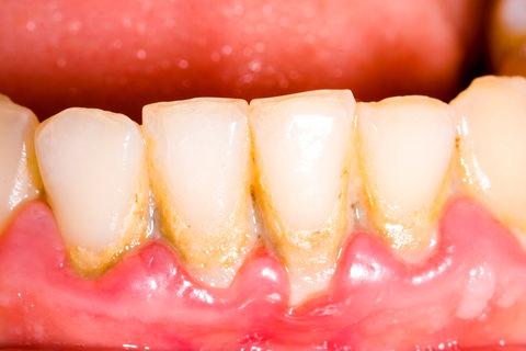 Plaque around teeth