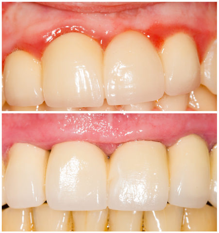 Gingivitis before and after