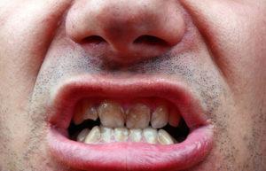 Plaque visible around teeth