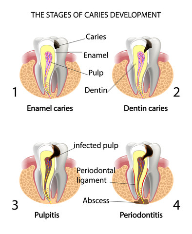 The stages of tooth decay