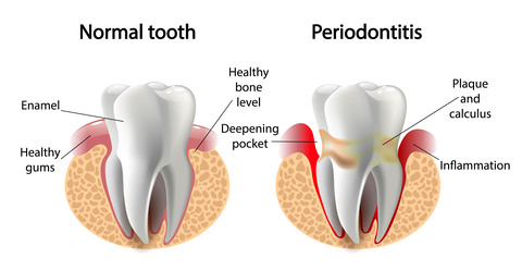 A healthy tooth vs Periodontitis
