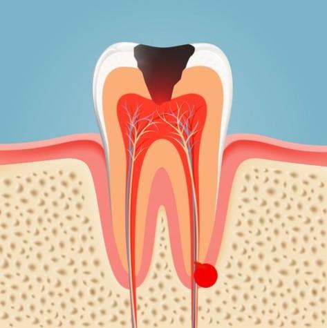 Tooth abscess illustration